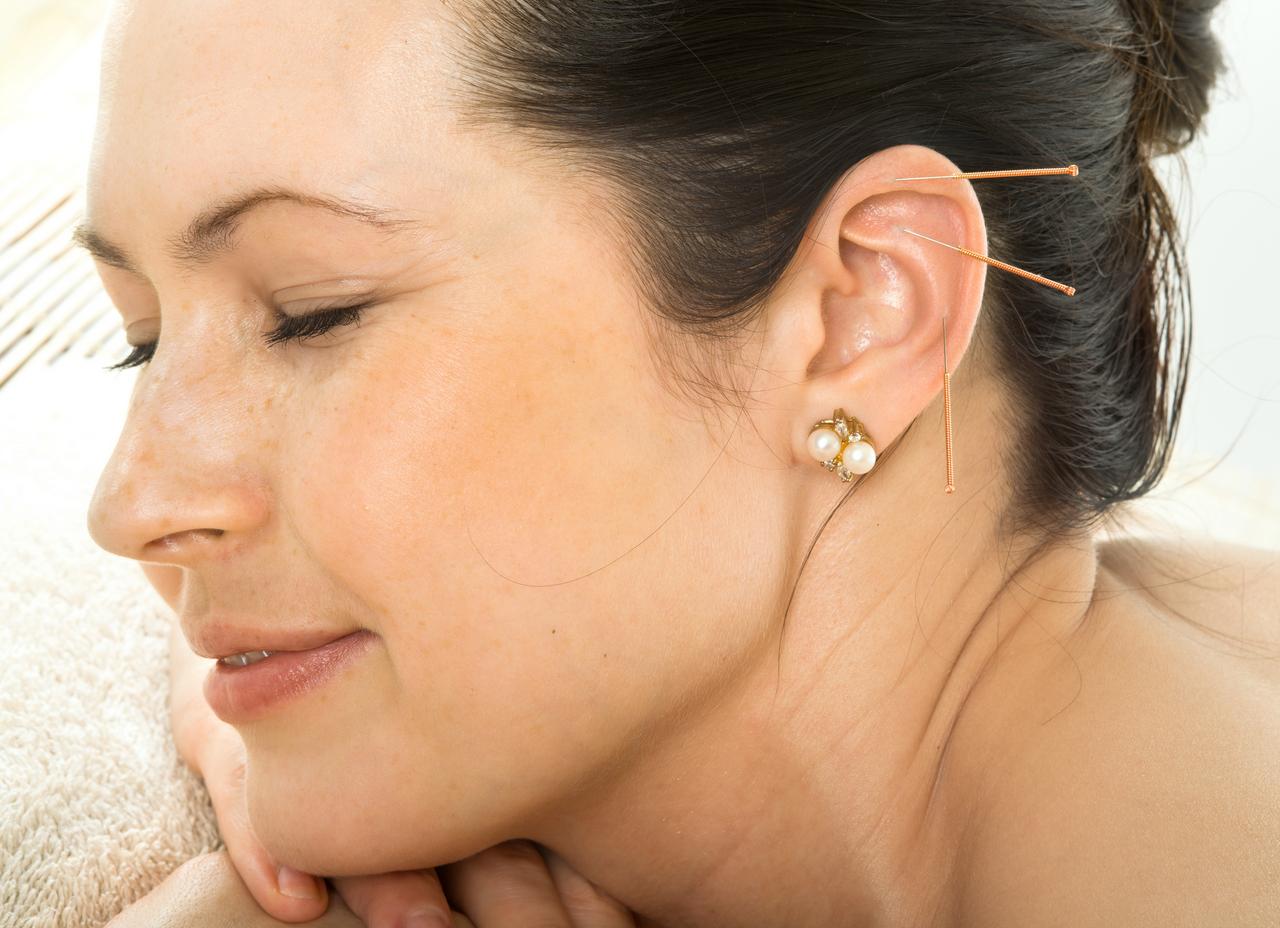 Øreakupunktur Århus, kvinde får nåle i øret